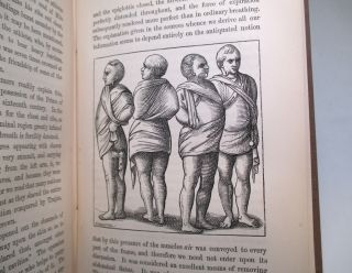 The Muscles and their Story, from the Earliest Times; including the Whole Text of Mercurialis, and the Opinions of Other Writers Ancient and Modern, on Mental and Bodily Development.