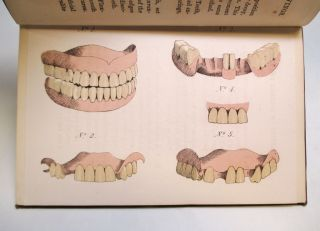 On the Loss of Teeth and on the Best Means of Restoring Them.